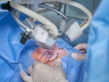 白內障病人-政府公立醫院-4月1日-人工晶體費用-香港財經時報HKBT